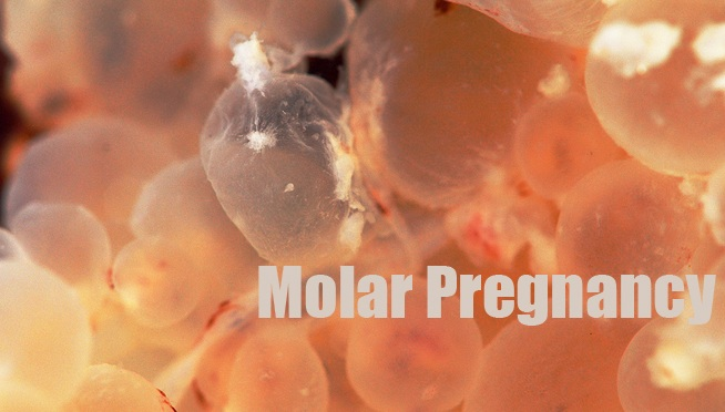 hydatidiform mole causes pathology diagnosis